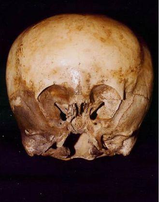 череп звездного ребенка