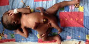 На Филиппинах родилась девочка с двумя головами и тремя ногами