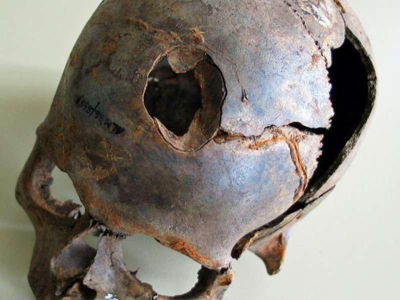 (Этот череп, отрытый в долине Толленсе, демонстрирует явные свидетельства травмы от тупого предмета, возможно от дубины.)