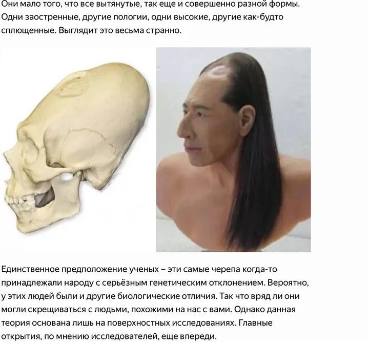 череп Паркаса