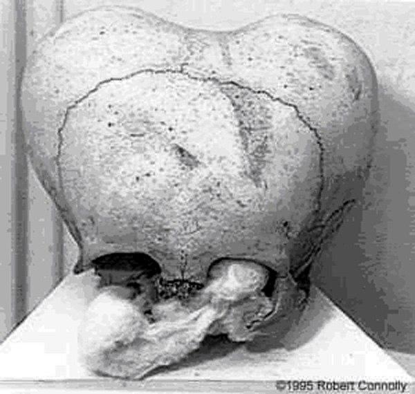 Странные черепа