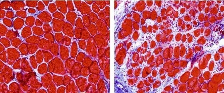 Слева — нормальная мышечная ткань. Справа — ткань с развитием фиброза
