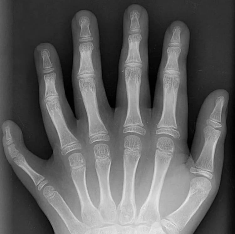 Так выглядит рентген руки с шестью пальцами