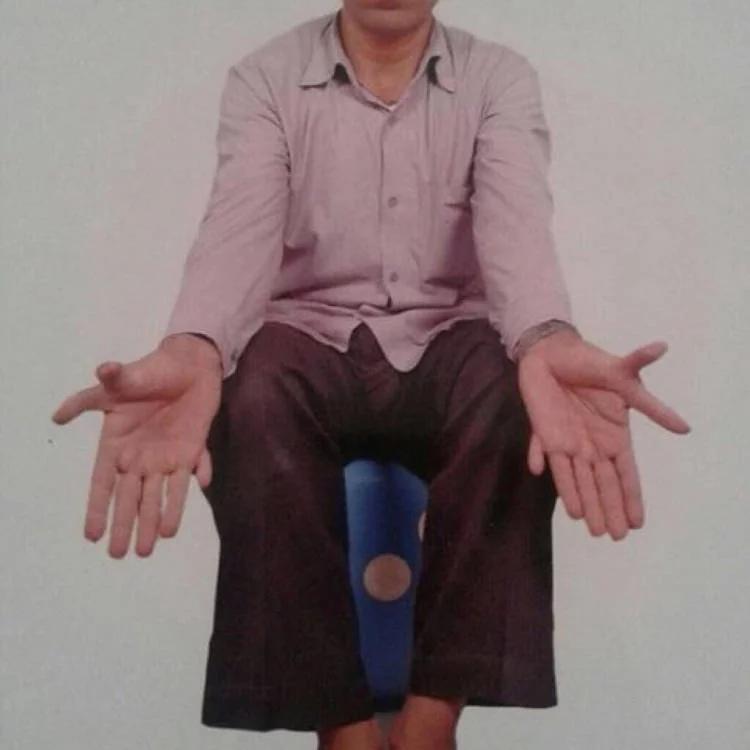Так выглядят руки индийского плотника. На его ногах и руках по 14 пальцев