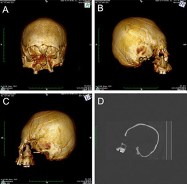 захоронение с необычными вытянутыми черепами