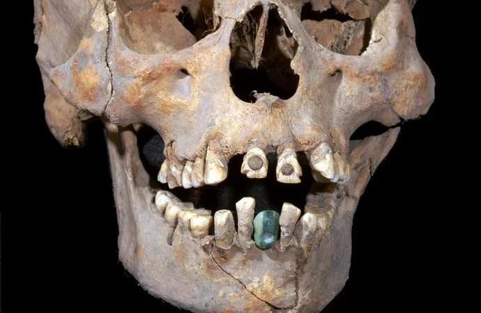 Древний череп с протезами