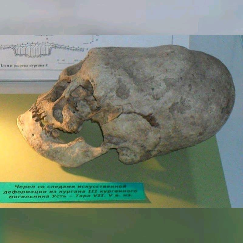 Длинноголовые черепа