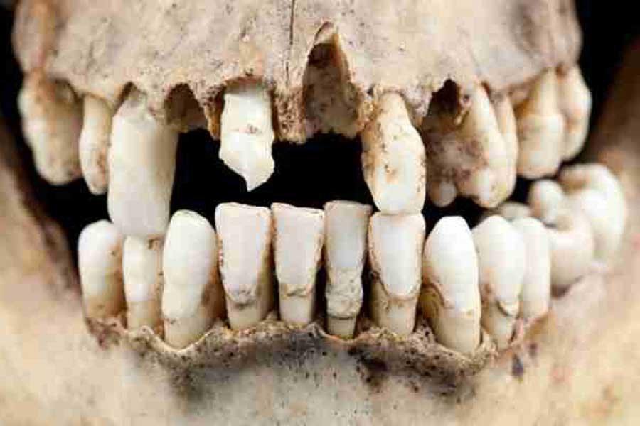 зубы древних людей